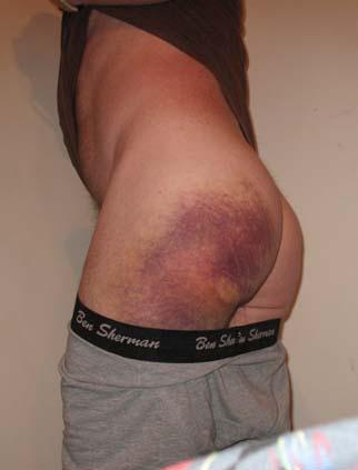 IMG_0684 Bruise